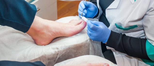 Podology treatment. Podiatrist treating toenail fungus. Doctor removes calluses, corns and treats ingrown nail. Hardware manicure. Health, body care concept. Selective focus.